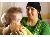 Hidrosefali hastası Eren Can verdi