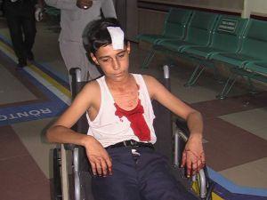 İnşaattan Kafasına Kalıp Tahtası Düşen Çocuk Yaralandı